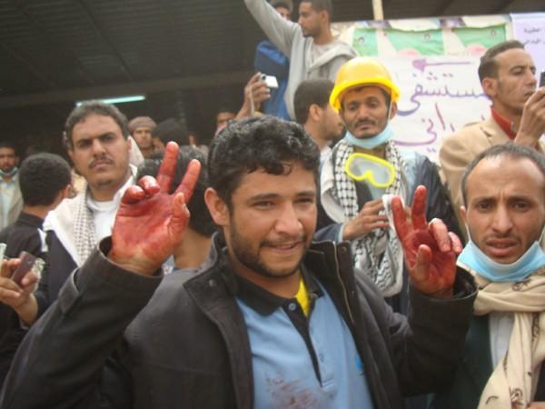 manifestant à Sanaa, capitale du Yemen, le 18 mars