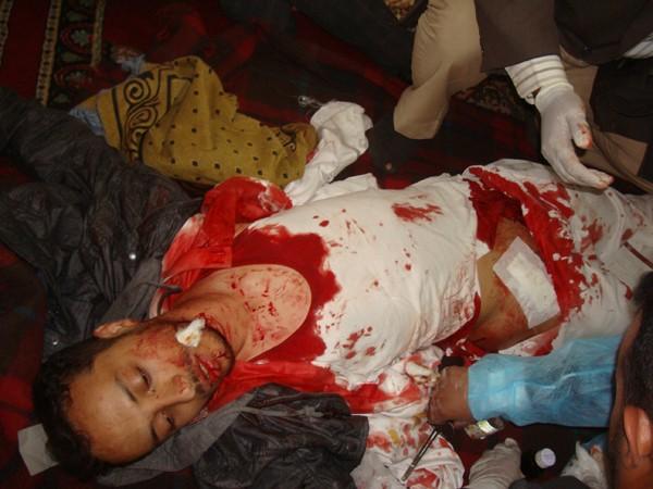 manifestant tué à Sanaa le 18 mars, photo de ye25feb.com