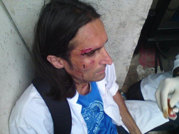 Un médecin résident bléssé par la brutalitée des policiers